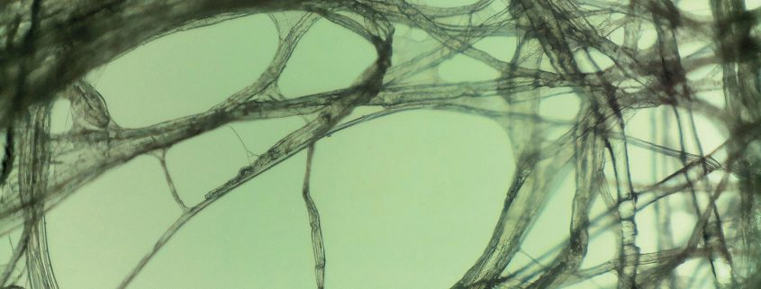 Identify this image and win a microscope from LabNews
