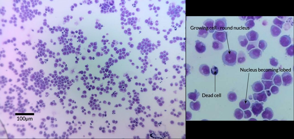 Leukemia cells viewed with the ioLight portable microscope